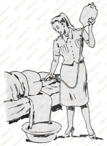 как поставить виниры дома